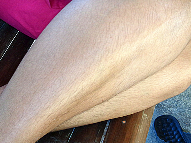 balut can cause hairy legs in females