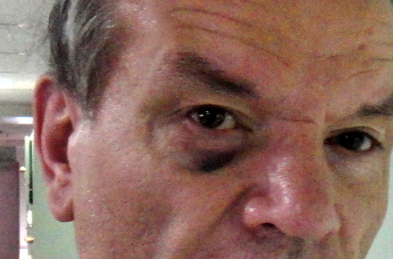 close up of the shiner